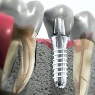 Qué hacer tras una cirugía de implantes dentales