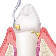 La limpieza dental profesional bien hecha