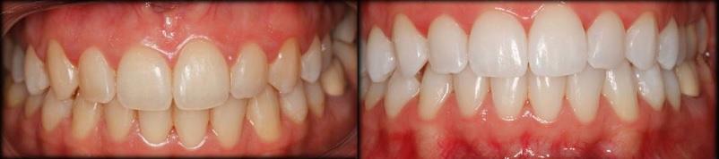 Blanqueamiento dental Clínica Dental Sieiro
