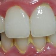 Qué esperar después de un curetaje dental