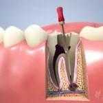 La caries muy avanzada: riesgo de endodoncia