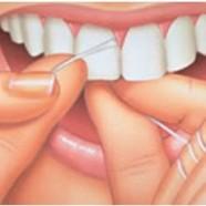Beneficios de utilizar la seda o cinta dental