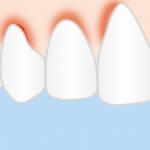 Ignorar la gingivitis puede ocasionar graves daños