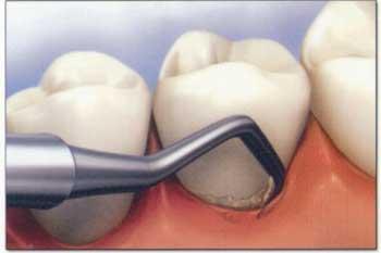 curetaje dental