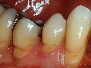 Desgaste de dientes al cepillarnos