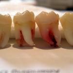 ¿Qué debo hacer después de la extracción de un diente?