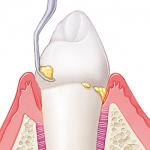 Los 6 pasos de una limpieza dental PROFESIONAL