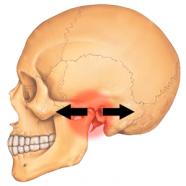 Consejos caseros para el dolor en la articulación de la mandíbula