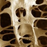 La pérdida de hueso en la mujer y los problemas periodontales