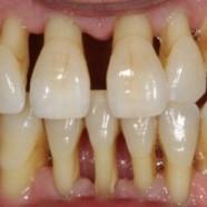 Periodontitis: una pesadilla para tus encías