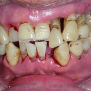 Las 3 fases de la Periodontitis y sus síntomas