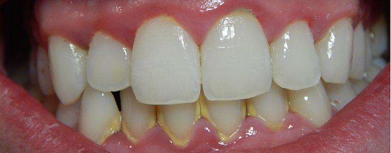 Paciente con gingivitis