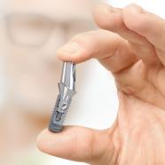 El precio de los implantes dentales: Todo lo que NO sabes