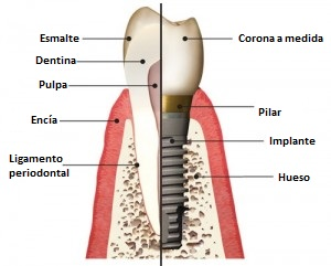 Implante dental