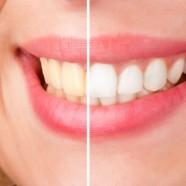 Guía completa sobre el blanqueamiento dental
