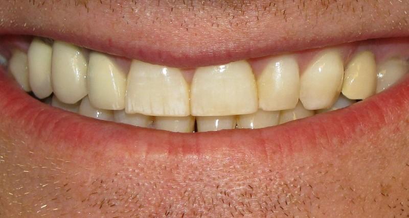Fluososis dental leve