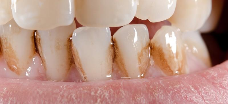 Manchas en los dientes por tabaco